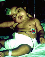 Image 3: Infant botulism. The infant cannot hold his head upright and is unable to suck or swallow.